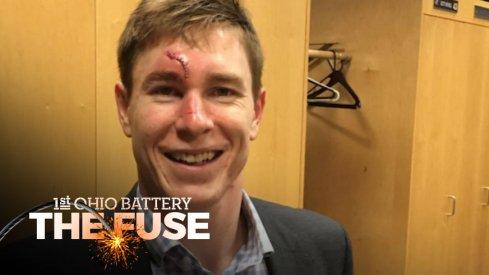 Matt Calvert's busted face