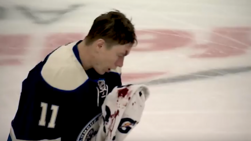Matt Calvert bleeds from his head as he takes a puck during a game against the New York Rangers
